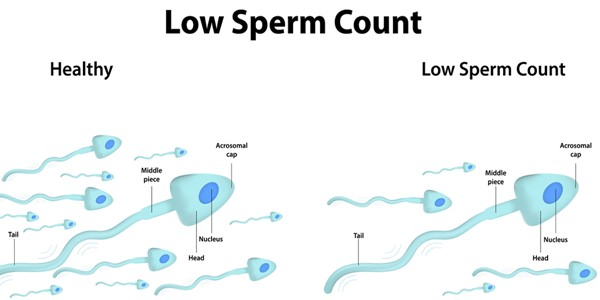 Prolargent 5x5 Extreme Answer For Low sperm Count